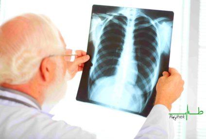 TUNISIE: LA TUBERCULOSE PULMONAIRE, SYMPTÔMES ET TRAITEMENT